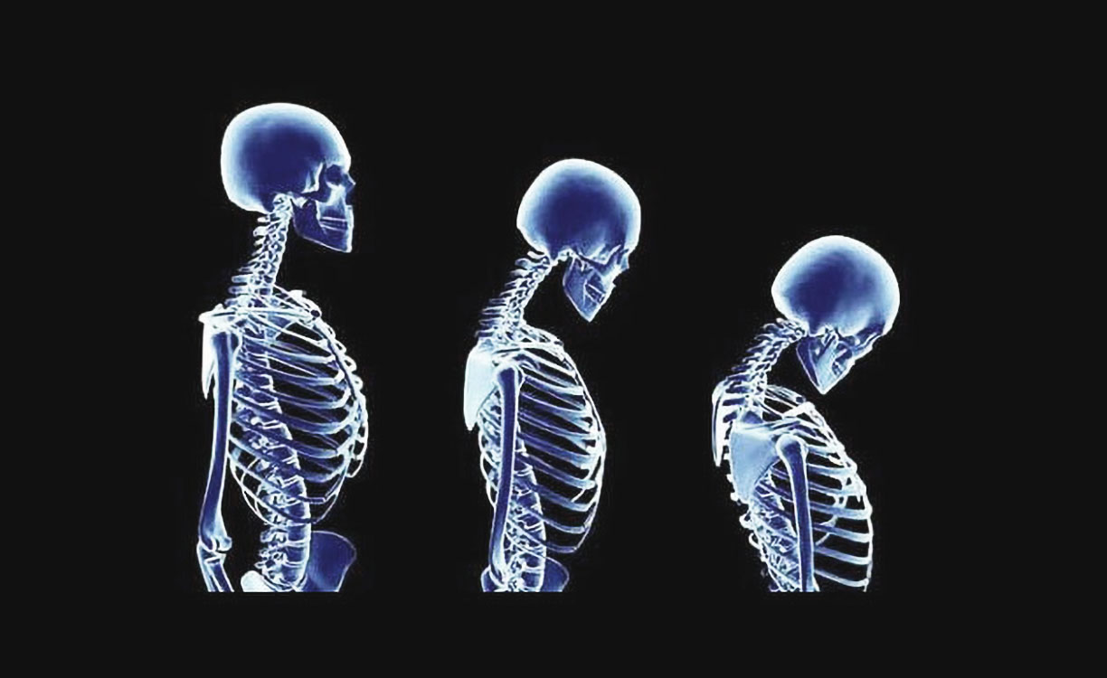 Osteoporosis: Exercise and Diet Tips for all Ages