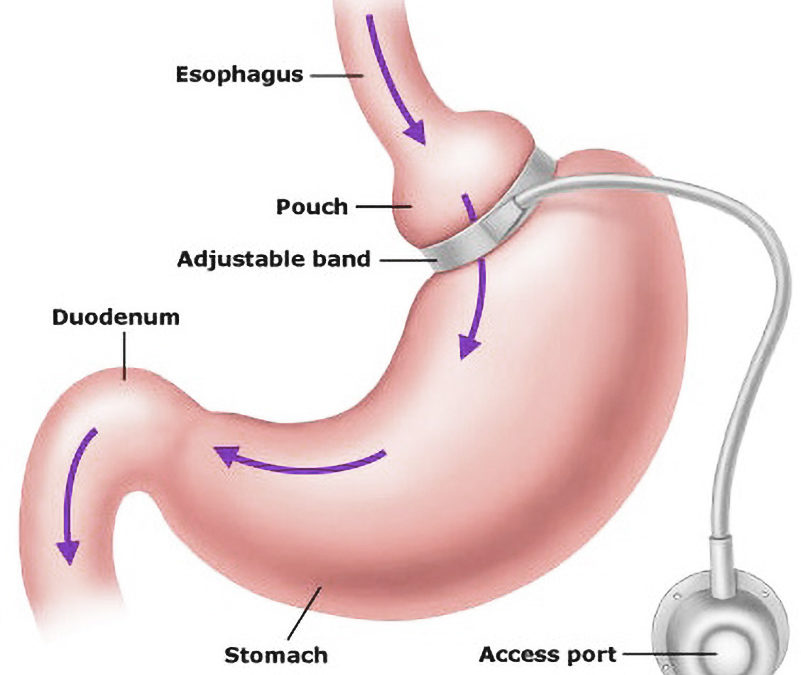 Overweight: Is Gastric Banding Surgery for You?